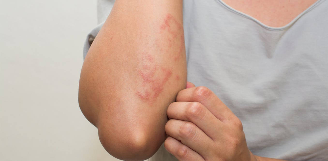 Herbal cures for Skin Rashes